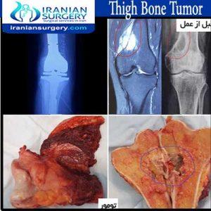 thigh-bone-tumor 3 abolghasemzadeh