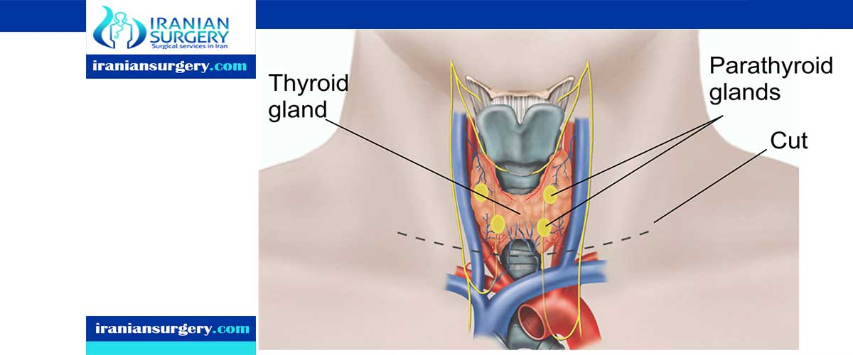 Thyroidectomy complications
