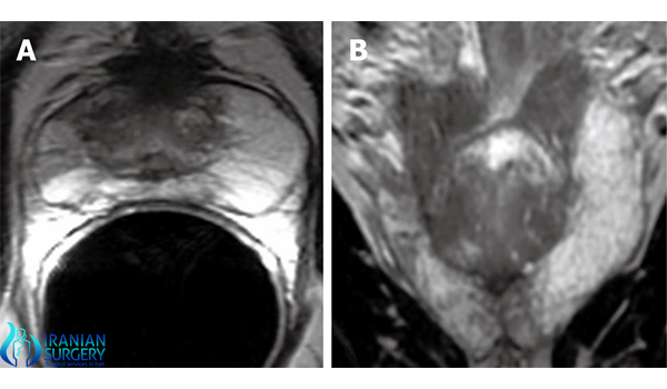 transitional resection of prostate in iran