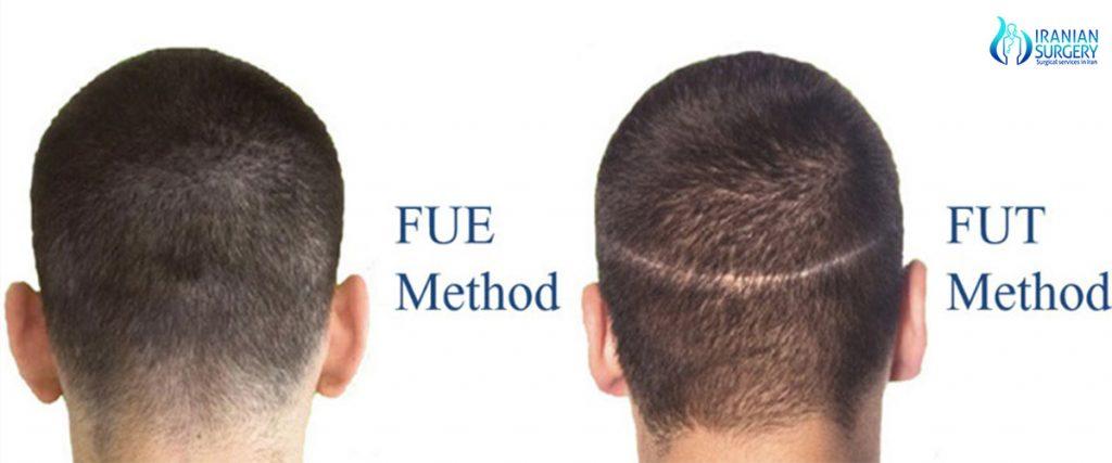 type of hair transplant in iran