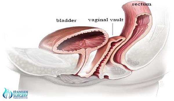 vaginal hysterectomy surgery in iran