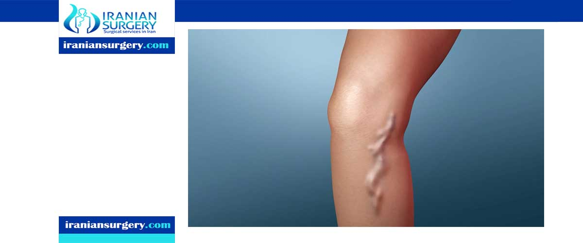 varicose vein laser surgery in Iran
