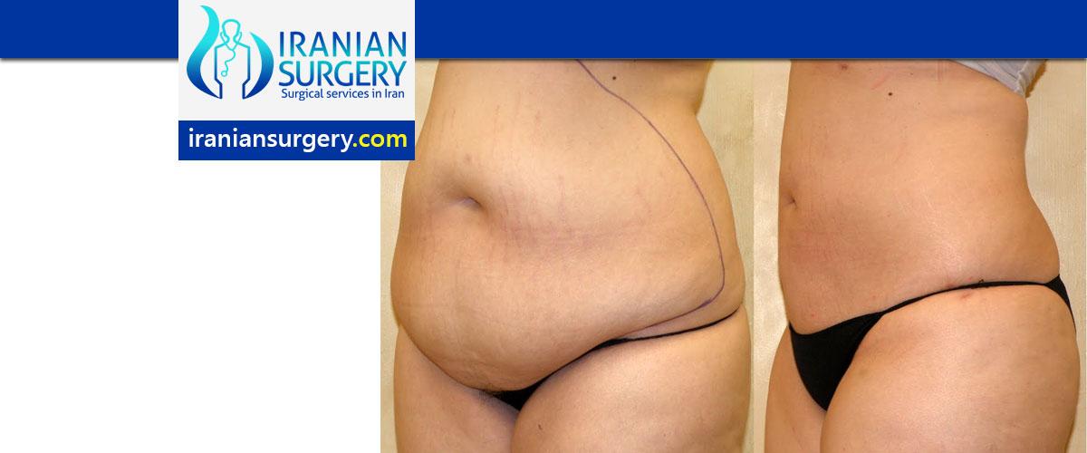 vaser liposuction side effects