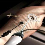 VATS lobectomy surgery in iran