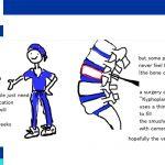 vertebral compression fractures treatment