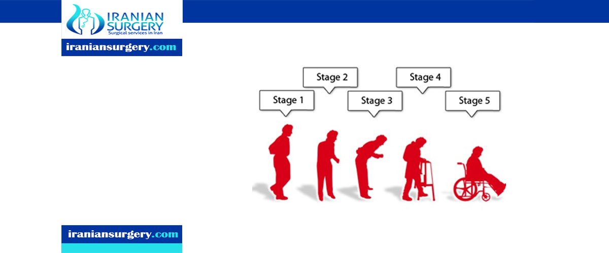 What are the 5 stages of Parkinson disease