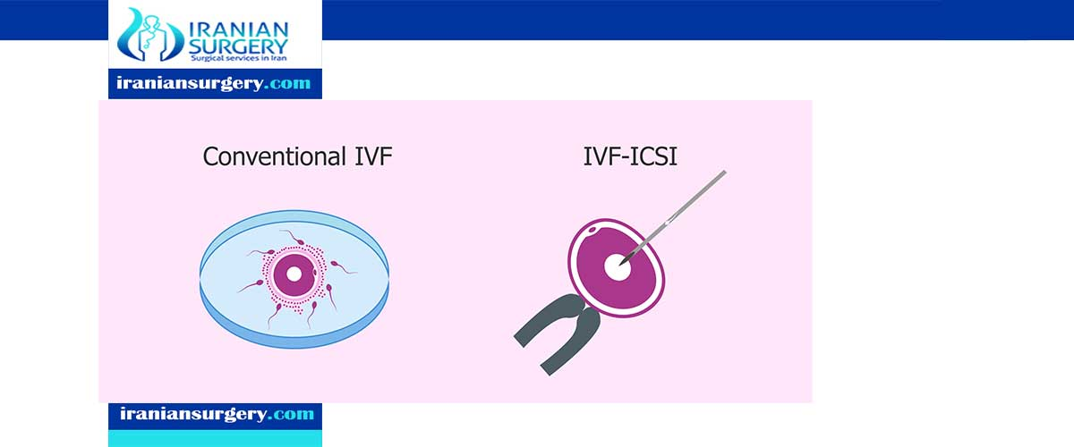 what is the difference between ICSI and IVF